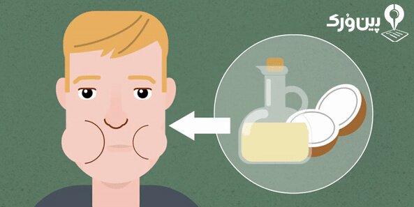 روغن نارگیل برای درمان سرماخوردگی